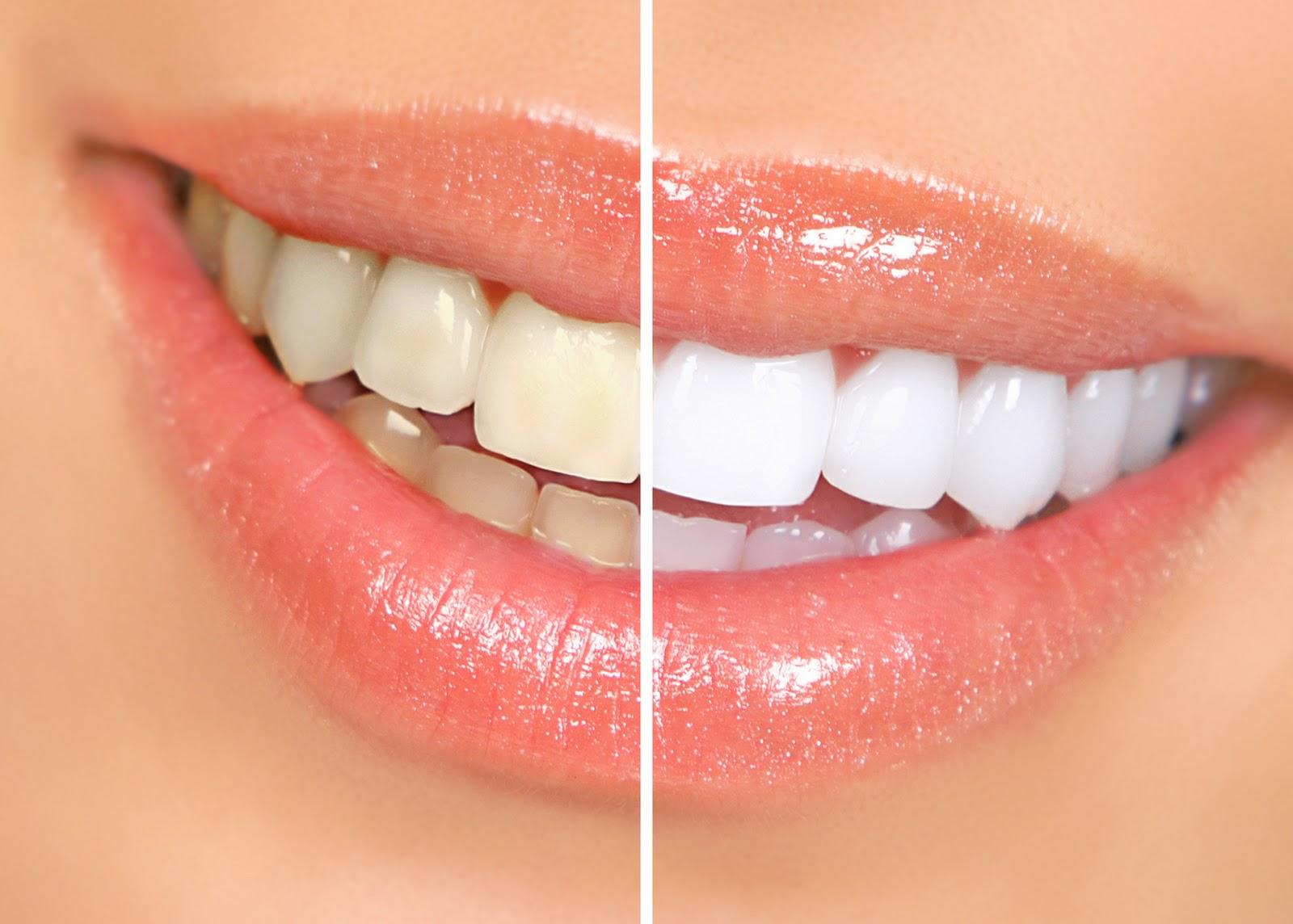 ¿Blanquearse los dientes o poner fundas estéticas?