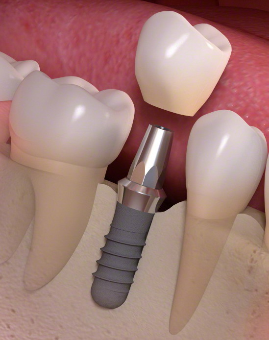 Bifosfonatos e implantes dentales
