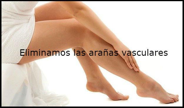 varices y arañas vasculares