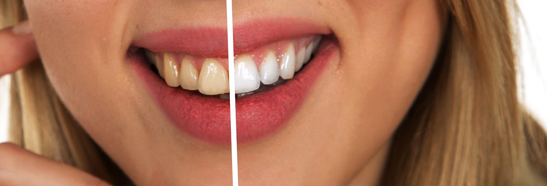 carillas dentales sin tallado